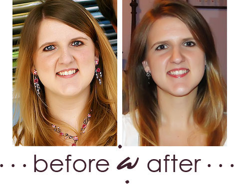 30 lb weight loss Before and After pics - Face